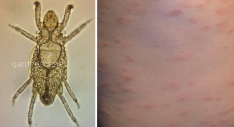 Пузатый клещ: уничтожитель пчел, а также причина зерновой чесотки человека
