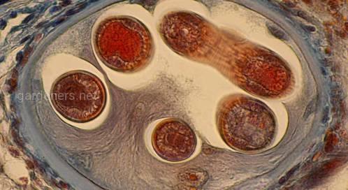 Наиболее частые признаки паразитарной инфекции в организме
