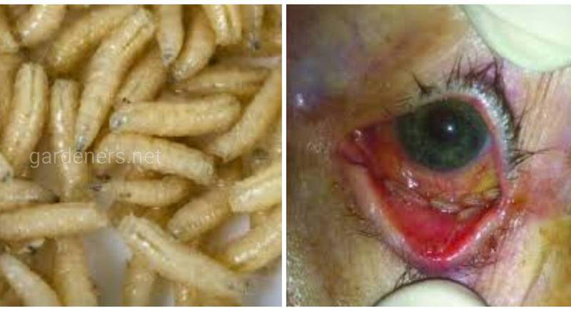 Офтальмоміаз - захворювання людини, що супроводжується ураженням очей паразитуючими личинками двокрилих комах