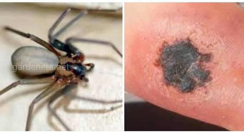Опасность укусов коричневых пауков отшельников