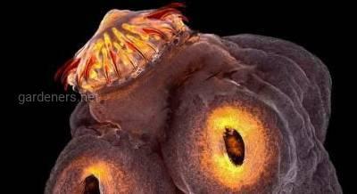 Цистицеркоз - опасное заболевание, которое провоцирует свиной (вооруженный) цепень